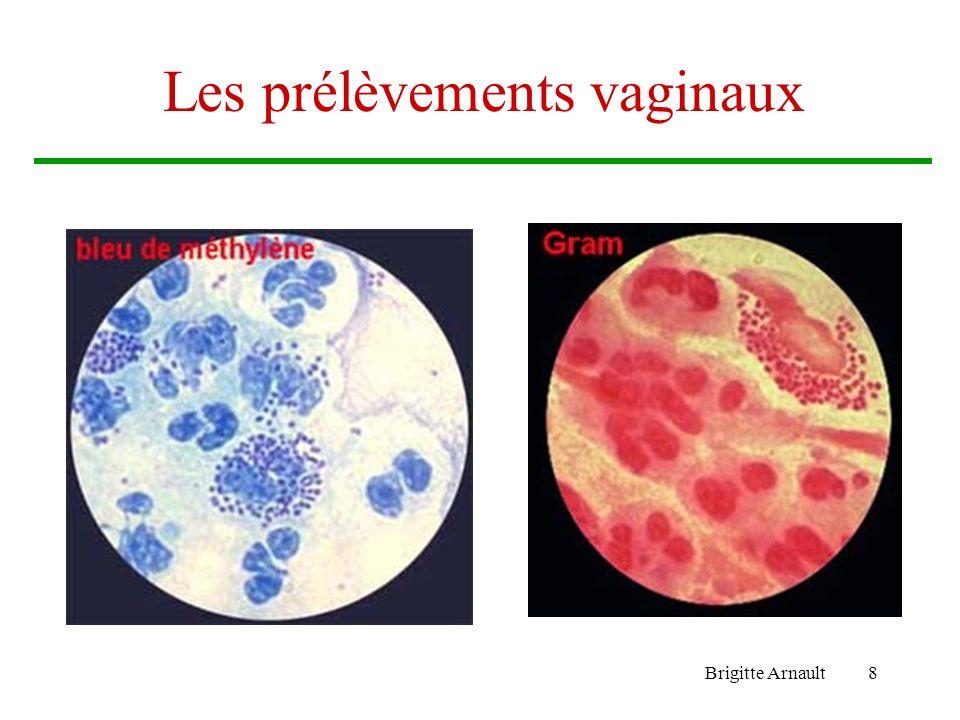 Brigitte Arnault9 Les prélèvements bronchiques Lexpectoration –Prélèvement Il doit être correct sinon lanalyse est impossible.