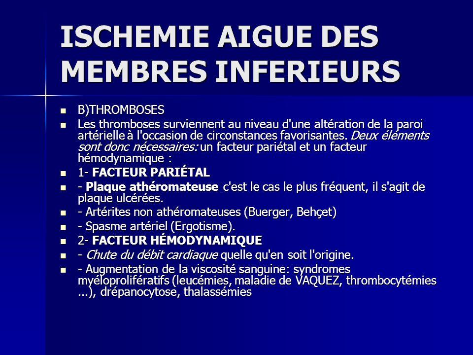 ISCHEMIE AIGUE DES MEMBRES INFERIEURS A) DIAGNOSTIC CLINIQUE A) DIAGNOSTIC CLINIQUE Le diagnostic de l ischémie aiguë est clinique.