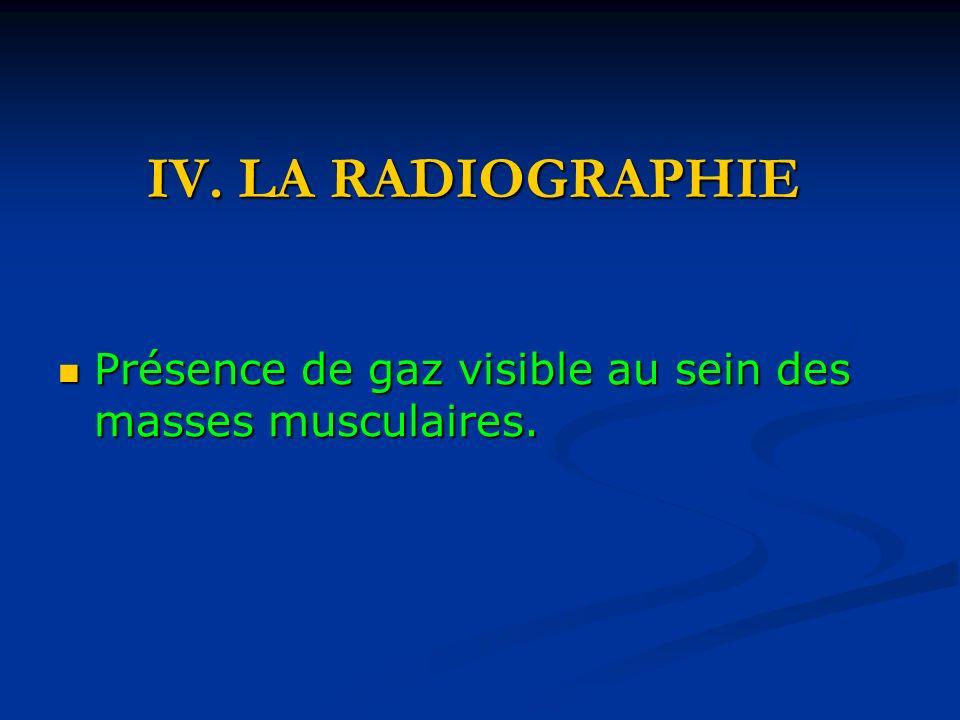 IV. LA RADIOGRAPHIE Présence de gaz visible au sein des masses musculaires. Présence de gaz visible au sein des masses musculaires.