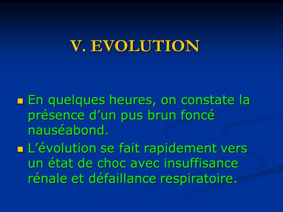 V.EVOLUTION En quelques heures, on constate la présence dun pus brun foncé nauséabond.