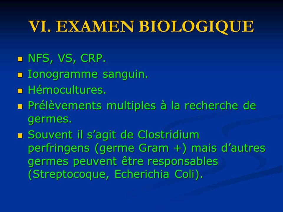 VI.EXAMEN BIOLOGIQUE NFS, VS, CRP. NFS, VS, CRP. Ionogramme sanguin.