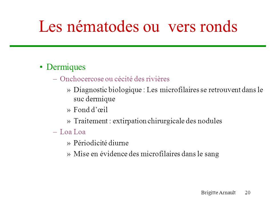 Brigitte Arnault20 Les nématodes ou vers ronds Dermiques –Onchocercose ou cécité des rivières »Diagnostic biologique : Les microfilaires se retrouvent