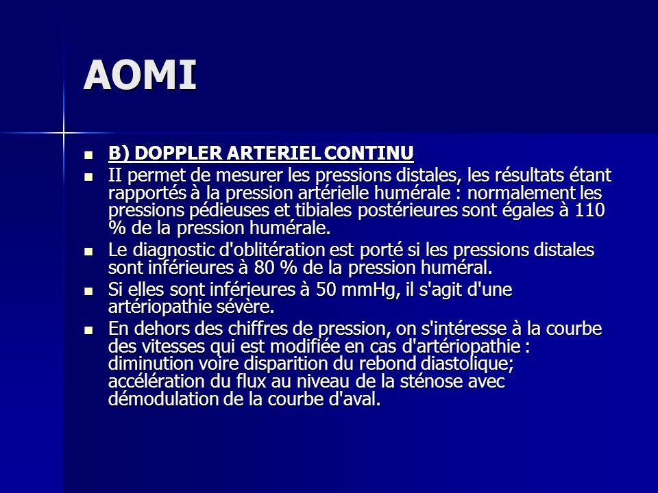 AOMI B) DOPPLER ARTERIEL CONTINU B) DOPPLER ARTERIEL CONTINU II permet de mesurer les pressions distales, les résultats étant rapportés à la pression