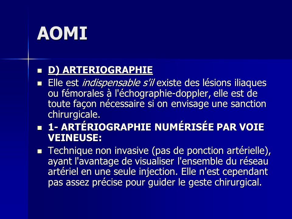 AOMI D) ARTERIOGRAPHIE D) ARTERIOGRAPHIE Elle est indispensable s'il existe des lésions iliaques ou fémorales à l'échographie-doppler, elle est de to
