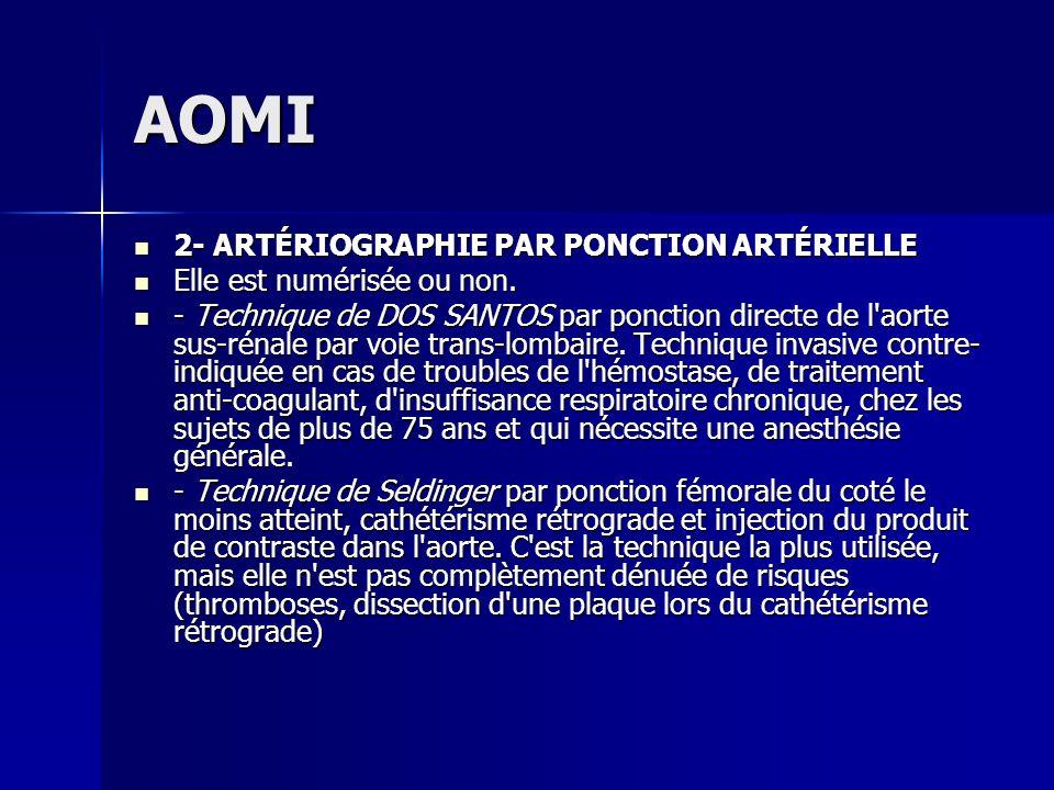 AOMI 2- ARTÉRIOGRAPHIE PAR PONCTION ARTÉRIELLE 2- ARTÉRIOGRAPHIE PAR PONCTION ARTÉRIELLE Elle est numérisée ou non. Elle est numérisée ou non. - Techn