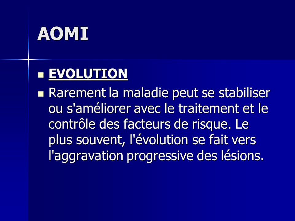 AOMI EVOLUTION EVOLUTION Rarement la maladie peut se stabiliser ou s'améliorer avec le traitement et le contrôle des facteurs de risque. Le plus souve