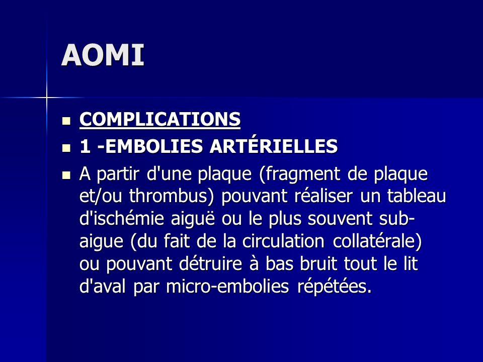 AOMI COMPLICATIONS COMPLICATIONS 1 -EMBOLIES ARTÉRIELLES 1 -EMBOLIES ARTÉRIELLES A partir d'une plaque (fragment de plaque et/ou thrombus) pouvant réa