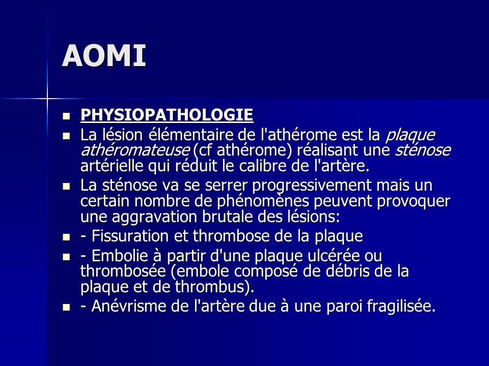 AOMI PHYSIOPATHOLOGIE PHYSIOPATHOLOGIE La lésion élémentaire de l'athérome est la plaque athéromateuse (cf athérome) réalisant une sténose artérielle