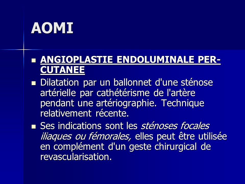 AOMI ANGIOPLASTIE ENDOLUMINALE PER- CUTANEE ANGIOPLASTIE ENDOLUMINALE PER- CUTANEE Dilatation par un ballonnet d'une sténose artérielle par cathétéris