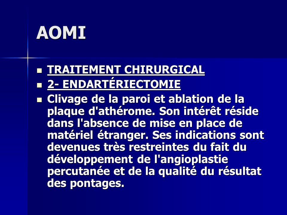 AOMI TRAITEMENT CHIRURGICAL TRAITEMENT CHIRURGICAL 2- ENDARTÉRIECTOMIE 2- ENDARTÉRIECTOMIE Clivage de la paroi et ablation de la plaque d'athérome. So