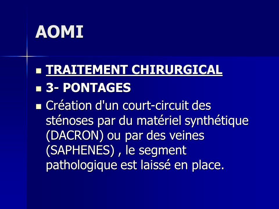AOMI TRAITEMENT CHIRURGICAL TRAITEMENT CHIRURGICAL 3- PONTAGES 3- PONTAGES Création d'un court-circuit des sténoses par du matériel synthétique (DACRO