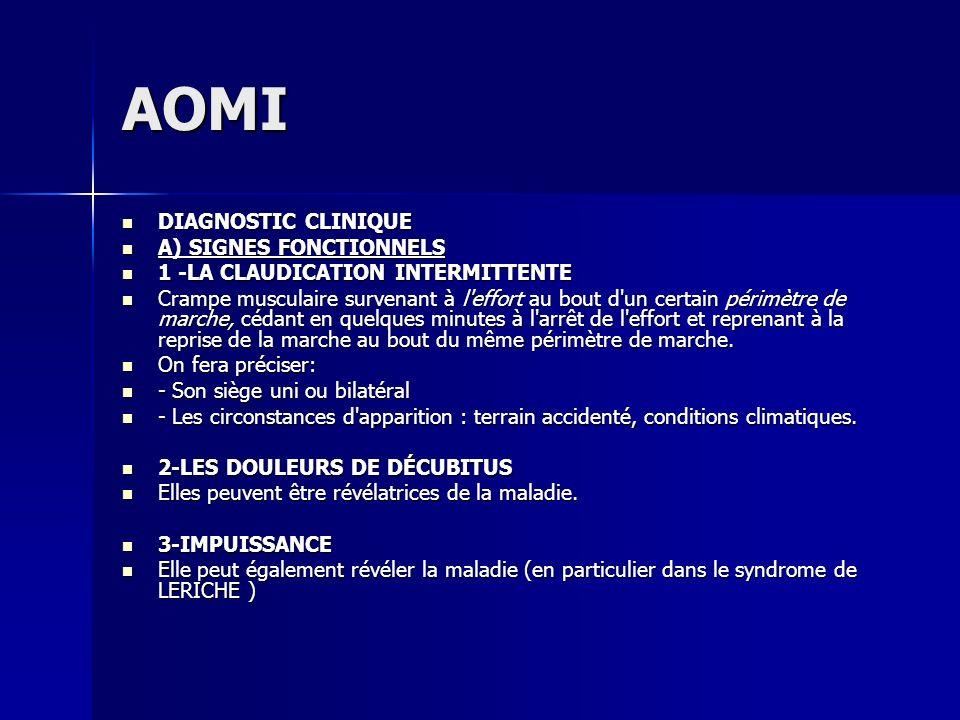 AOMI DIAGNOSTIC CLINIQUE DIAGNOSTIC CLINIQUE A) SIGNES FONCTIONNELS A) SIGNES FONCTIONNELS 1 -LA CLAUDICATION INTERMITTENTE 1 -LA CLAUDICATION INTERMI