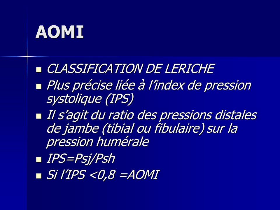 AOMI CLASSIFICATION DE LERICHE CLASSIFICATION DE LERICHE Plus précise liée à lindex de pression systolique (IPS) Plus précise liée à lindex de pressio