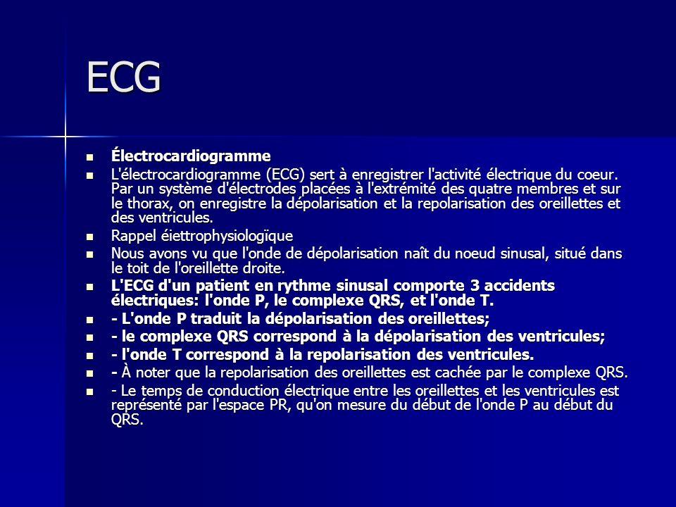 ECG Électrocardiogramme Électrocardiogramme L'électrocardiogramme (ECG) sert à enregistrer l'activité électrique du coeur. Par un système d'électrode