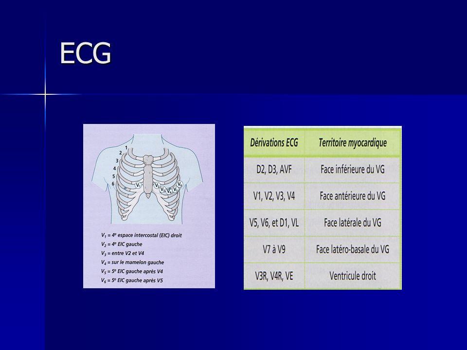 ECG ENREGISTREMENT D UN ECG ENREGISTREMENT D UN ECG BUTS, INDICATIONS BUTS, INDICATIONS L ECG est un examen fondamental de surveillance d un patient en cardiologie.
