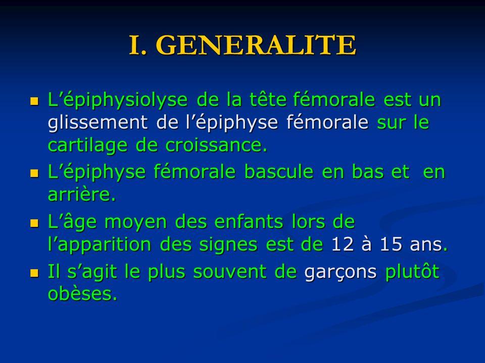 I. GENERALITE Lépiphysiolyse de la tête fémorale est un glissement de lépiphyse fémorale sur le cartilage de croissance. Lépiphysiolyse de la tête fém