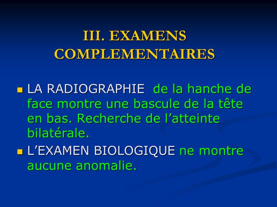 III. EXAMENS COMPLEMENTAIRES LA RADIOGRAPHIE de la hanche de face montre une bascule de la tête en bas. Recherche de latteinte bilatérale. LA RADIOGRA