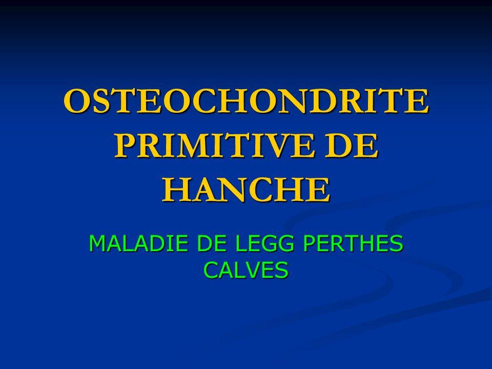 OSTEOCHONDRITE PRIMITIVE DE HANCHE MALADIE DE LEGG PERTHES CALVES