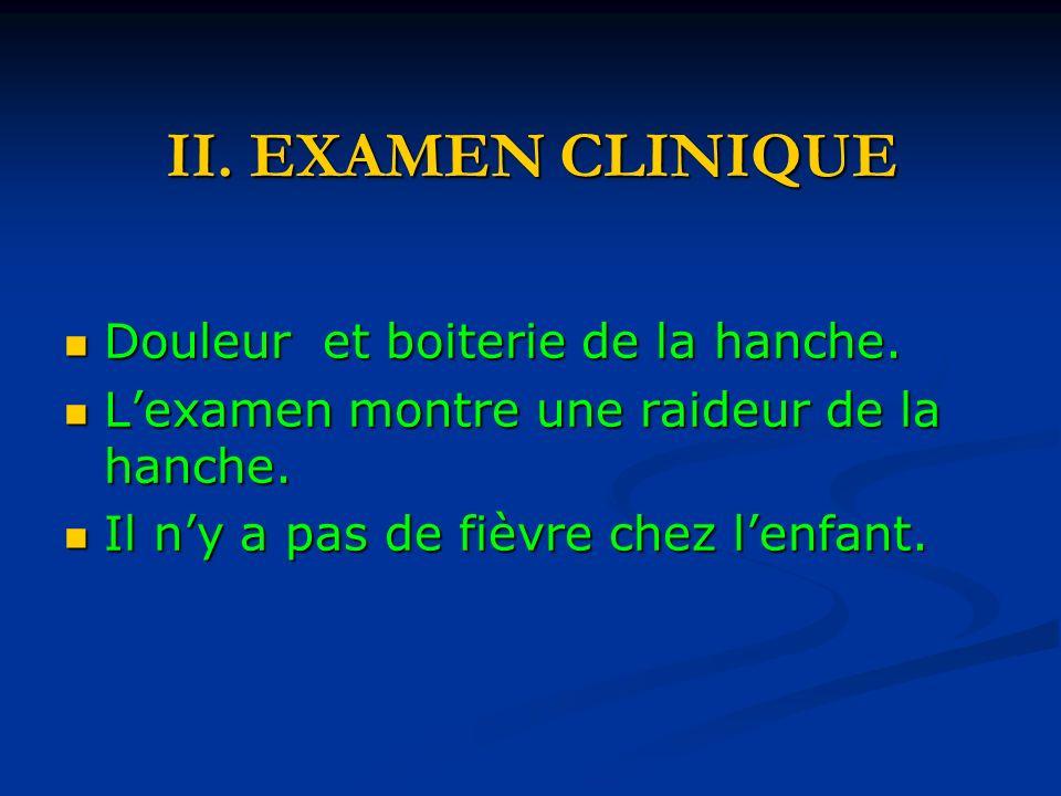 II.EXAMEN CLINIQUE Douleur et boiterie de la hanche.