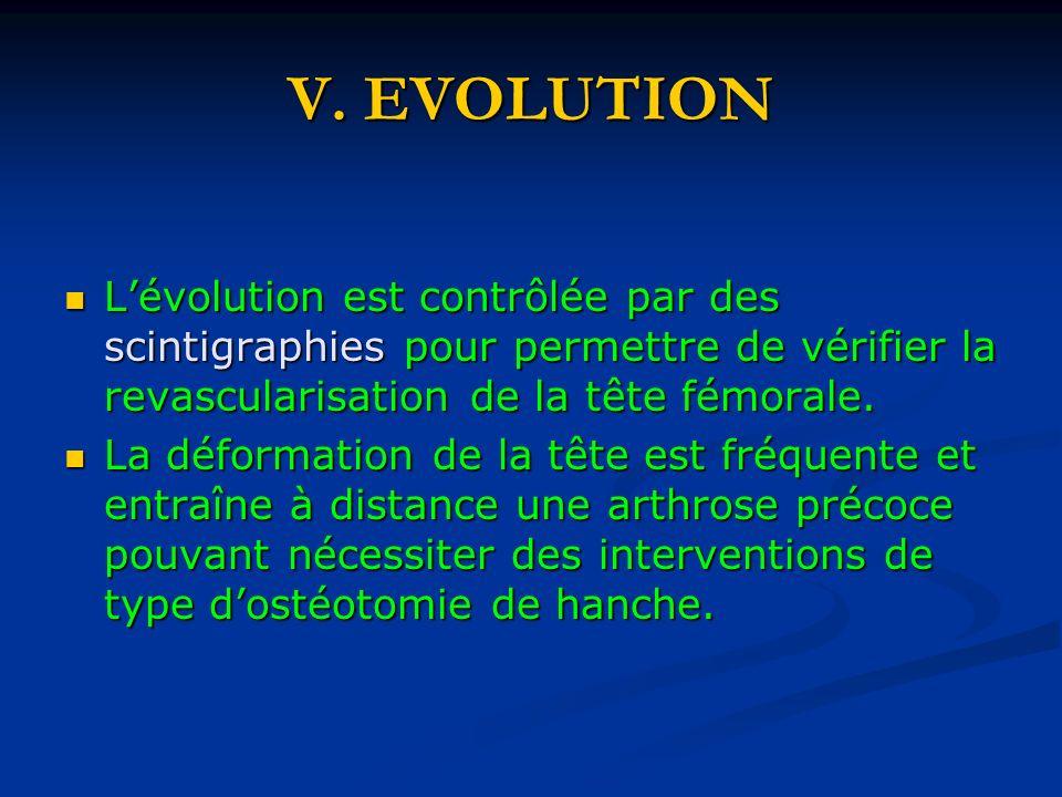 V. EVOLUTION Lévolution est contrôlée par des scintigraphies pour permettre de vérifier la revascularisation de la tête fémorale. Lévolution est contr