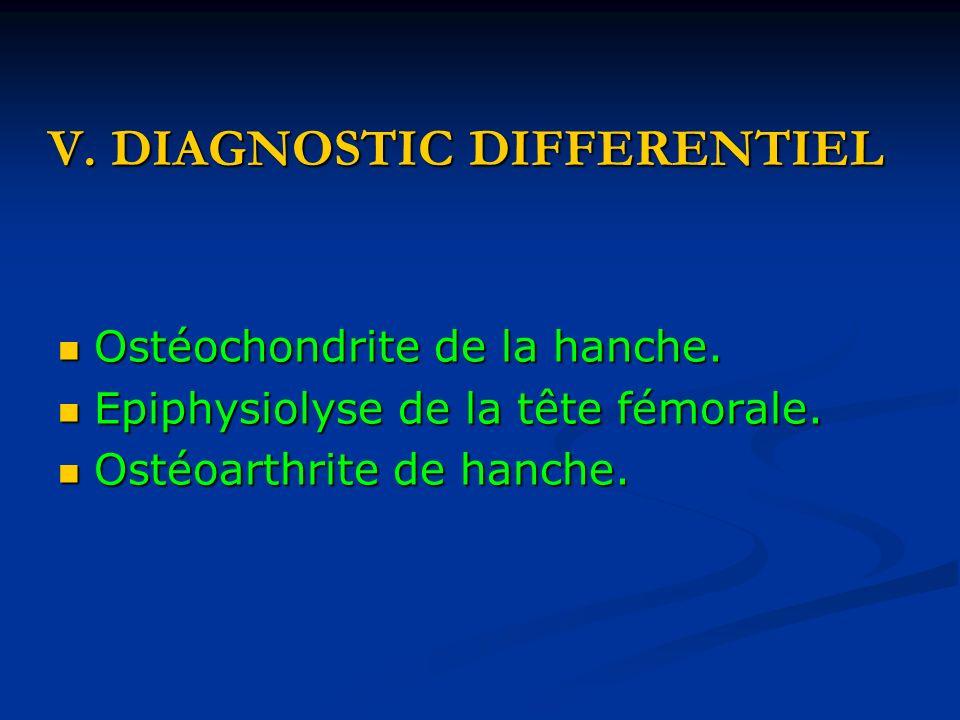 V.DIAGNOSTIC DIFFERENTIEL Ostéochondrite de la hanche.