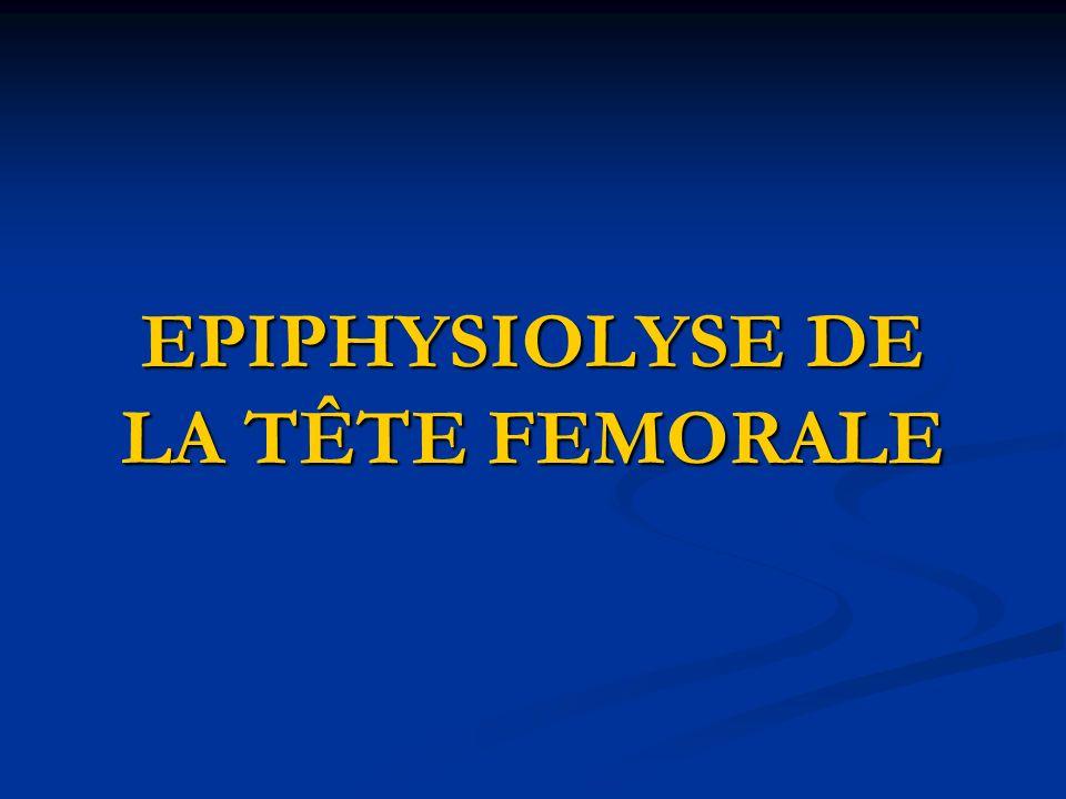 EPIPHYSIOLYSE DE LA TÊTE FEMORALE