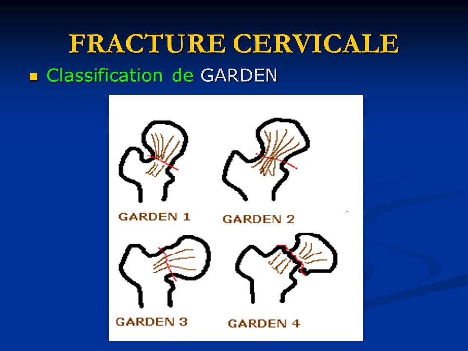 FRACTURE CERVICALE Classification de GARDEN Classification de GARDEN