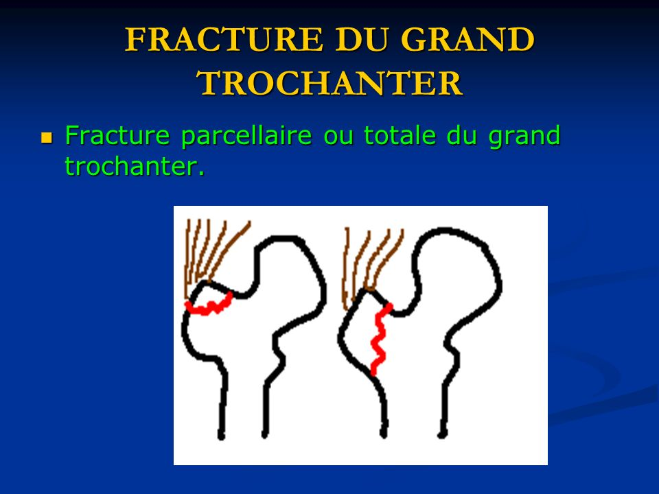 FRACTURE DU GRAND TROCHANTER Fracture parcellaire ou totale du grand trochanter. Fracture parcellaire ou totale du grand trochanter.