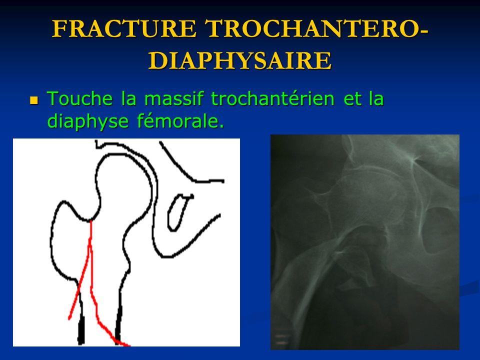 FRACTURE TROCHANTERO- DIAPHYSAIRE Touche la massif trochantérien et la diaphyse fémorale. Touche la massif trochantérien et la diaphyse fémorale.