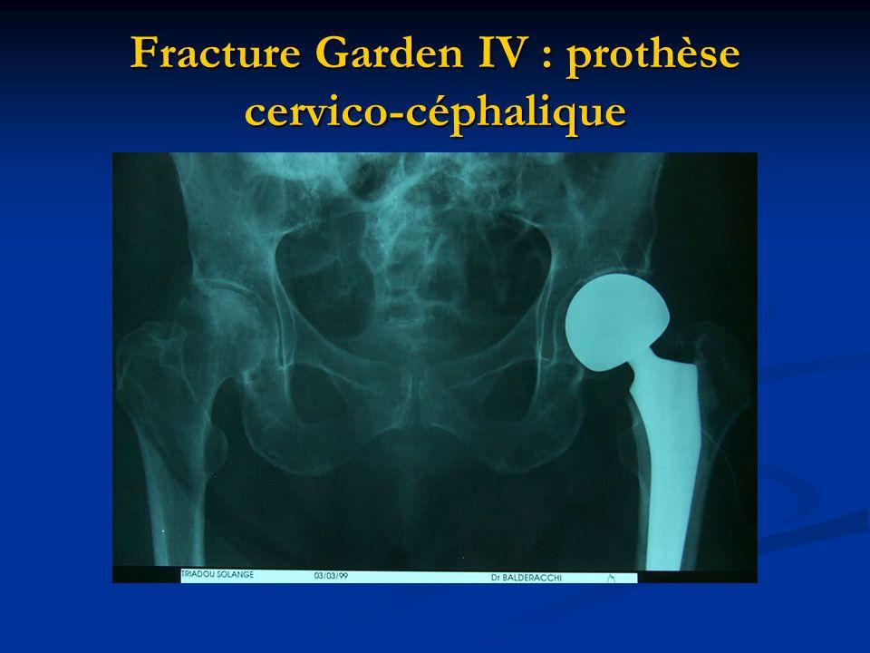 Fracture Garden IV : prothèse cervico-céphalique