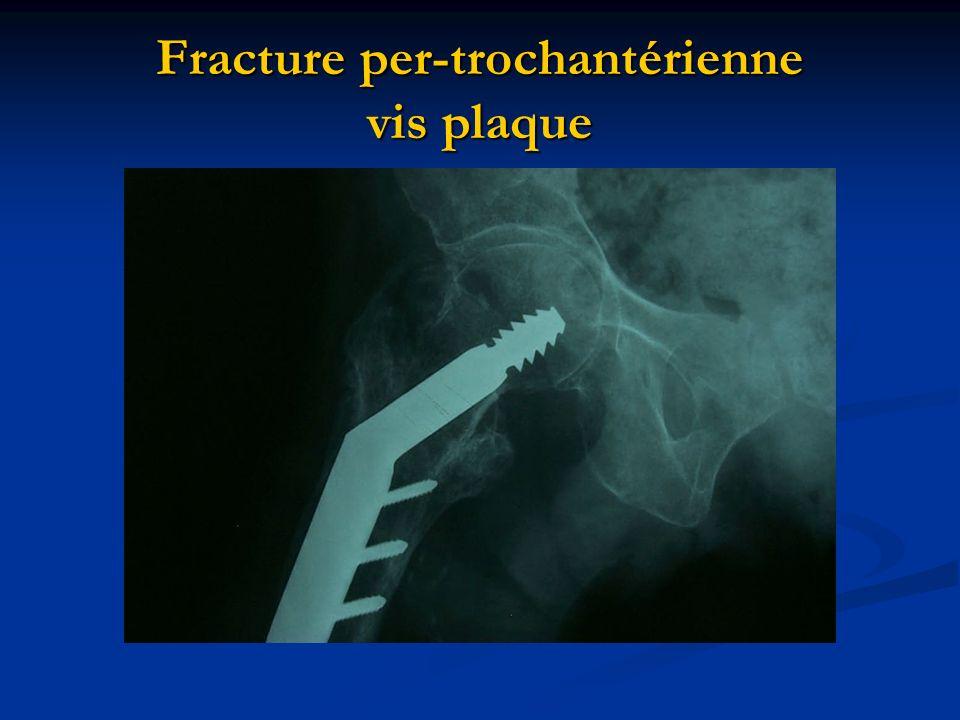 Fracture per-trochantérienne vis plaque