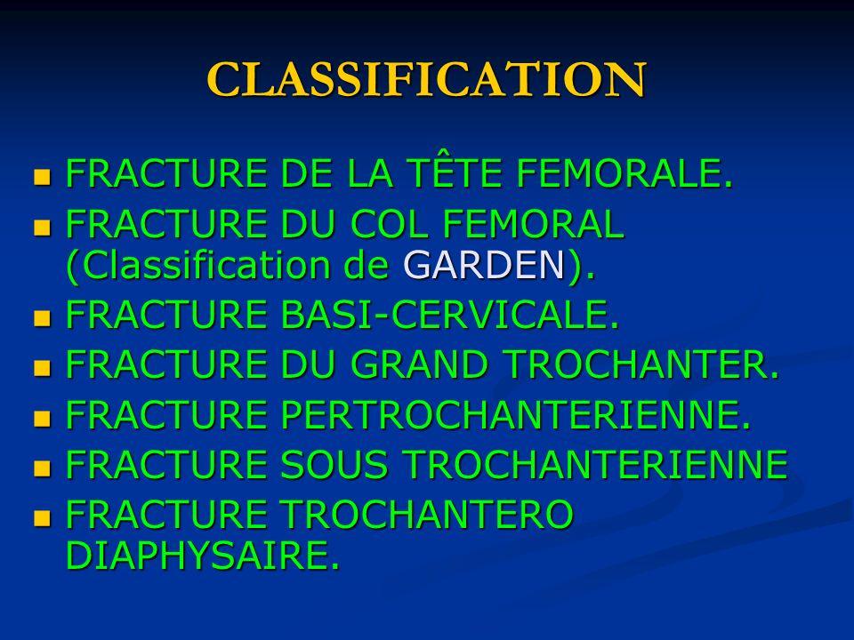 CLASSIFICATION FRACTURE DE LA TÊTE FEMORALE. FRACTURE DE LA TÊTE FEMORALE. FRACTURE DU COL FEMORAL (Classification de GARDEN). FRACTURE DU COL FEMORAL