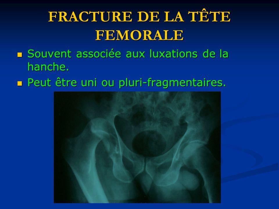 FRACTURE DE LA TÊTE FEMORALE Souvent associée aux luxations de la hanche. Souvent associée aux luxations de la hanche. Peut être uni ou pluri-fragment