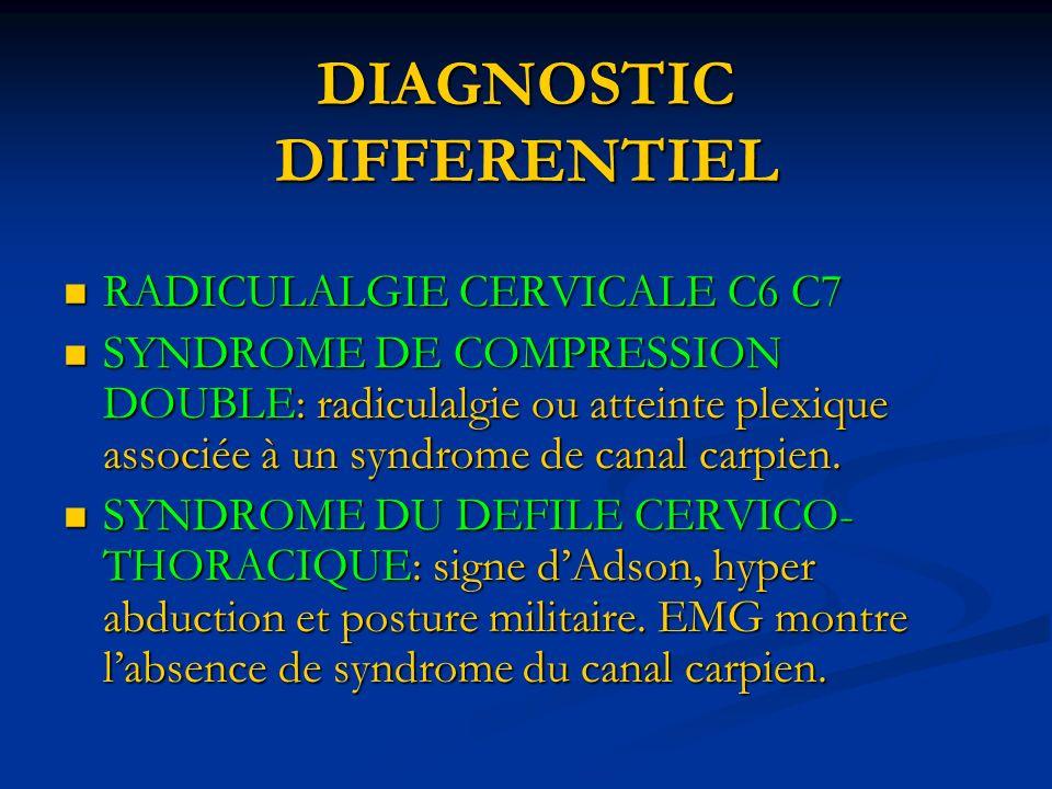 DIAGNOSTIC DIFFERENTIEL RADICULALGIE CERVICALE C6 C7 RADICULALGIE CERVICALE C6 C7 SYNDROME DE COMPRESSION DOUBLE: radiculalgie ou atteinte plexique associée à un syndrome de canal carpien.