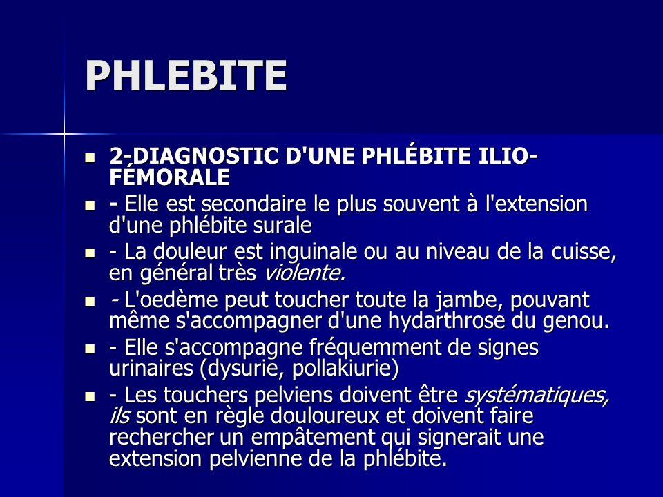 PHLEBITE 2-DIAGNOSTIC D'UNE PHLÉBITE ILIO- FÉMORALE 2-DIAGNOSTIC D'UNE PHLÉBITE ILIO- FÉMORALE - Elle est secondaire le plus souvent à l'extension d'u