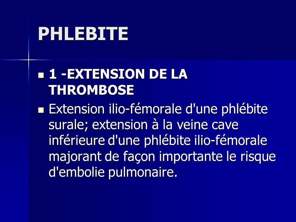 PHLEBITE 1 -EXTENSION DE LA THROMBOSE 1 -EXTENSION DE LA THROMBOSE Extension ilio-fémorale d'une phlébite surale; extension à la veine cave inférieure
