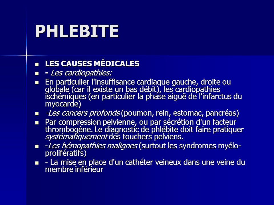 PHLEBITE LES CAUSES MÉDICALES LES CAUSES MÉDICALES - Les cardiopathies: - Les cardiopathies: En particulier l'insuffisance cardiaque gauche, droite ou