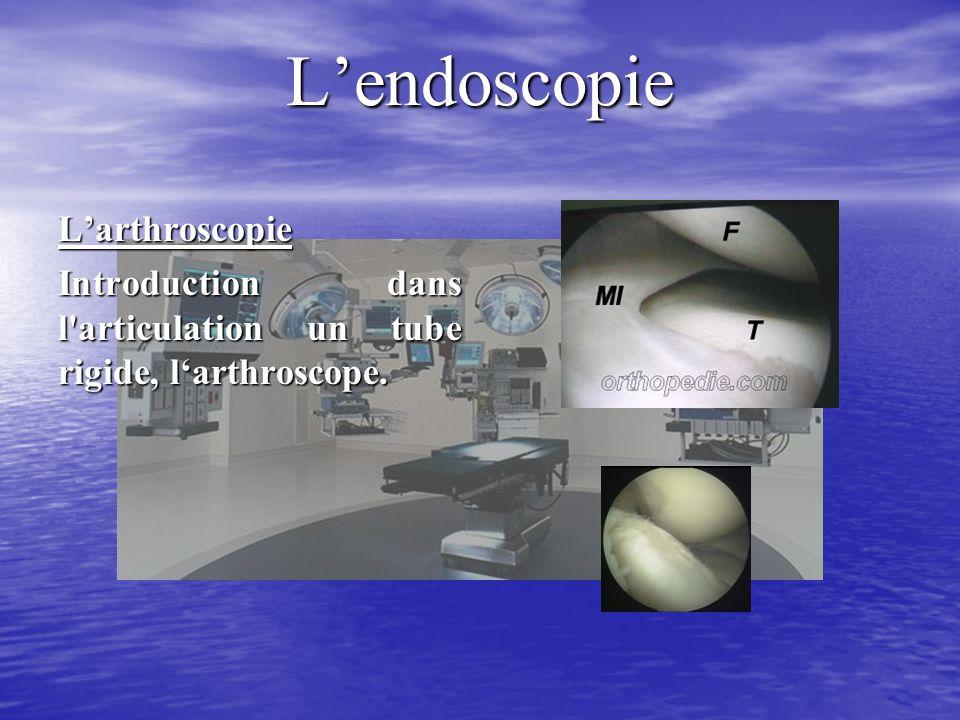 Lendoscopie Larthroscopie Introduction dans l articulation un tube rigide, larthroscope.