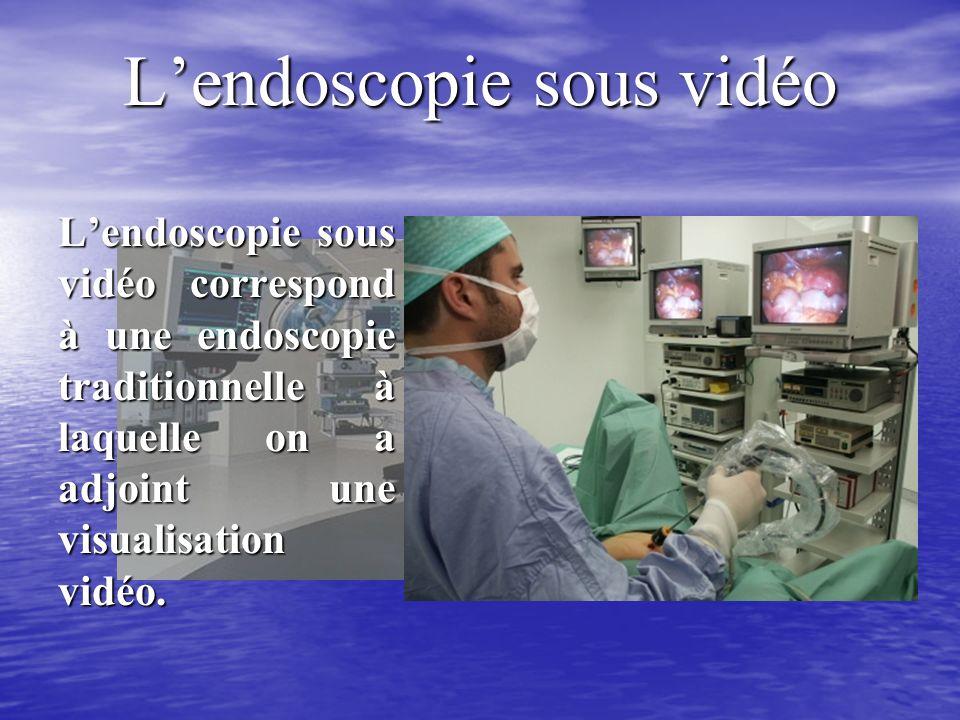 Lendoscopie sous vidéo Lendoscopie sous vidéo correspond à une endoscopie traditionnelle à laquelle on a adjoint une visualisation vidéo.