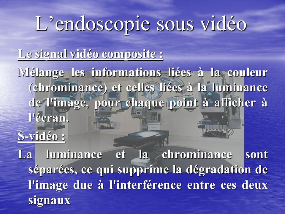 Lendoscopie sous vidéo Le signal vidéo composite : Mélange les informations liées à la couleur (chrominance) et celles liées à la luminance de l image, pour chaque point à afficher à l écran.