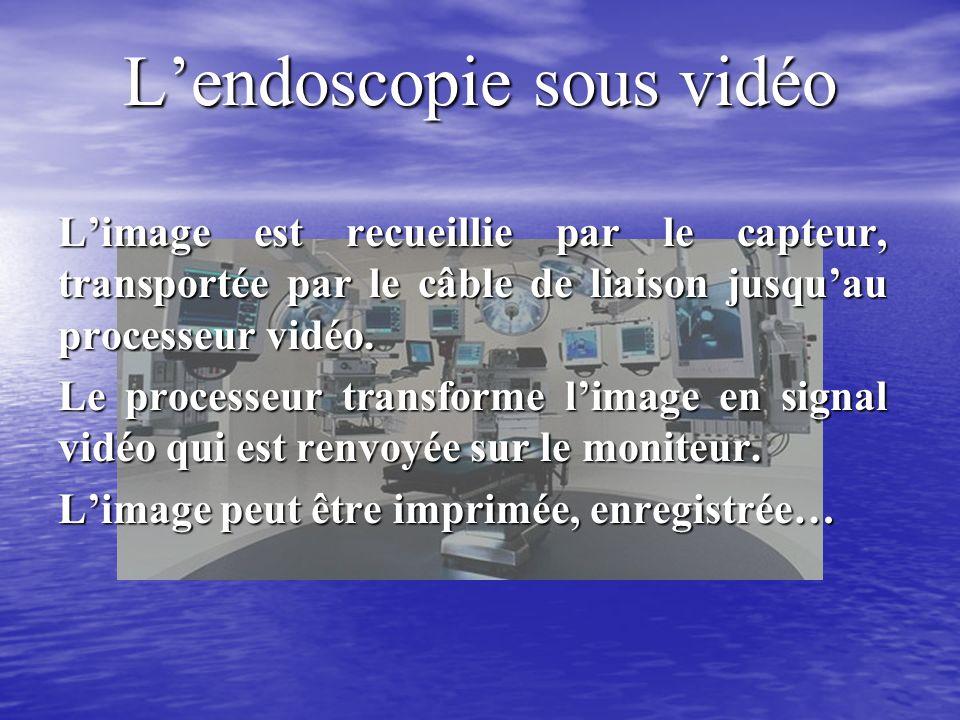 Lendoscopie sous vidéo Limage est recueillie par le capteur, transportée par le câble de liaison jusquau processeur vidéo.