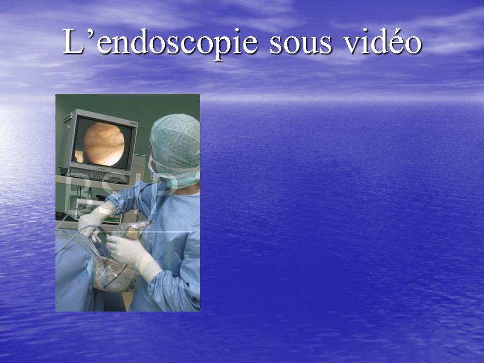 Lendoscopie sous vidéo