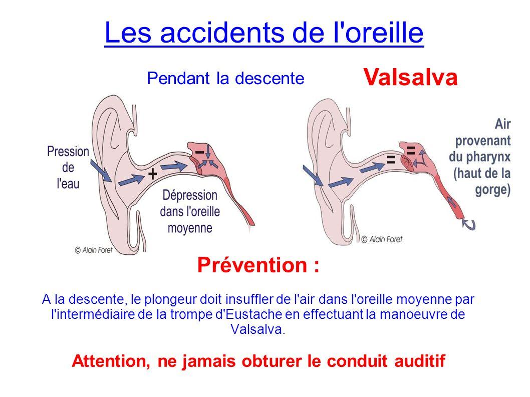 Les accidents de l oreille Prévention : A la descente, le plongeur doit insuffler de l air dans l oreille moyenne par l intermédiaire de la trompe d Eustache en effectuant la manoeuvre de Valsalva.