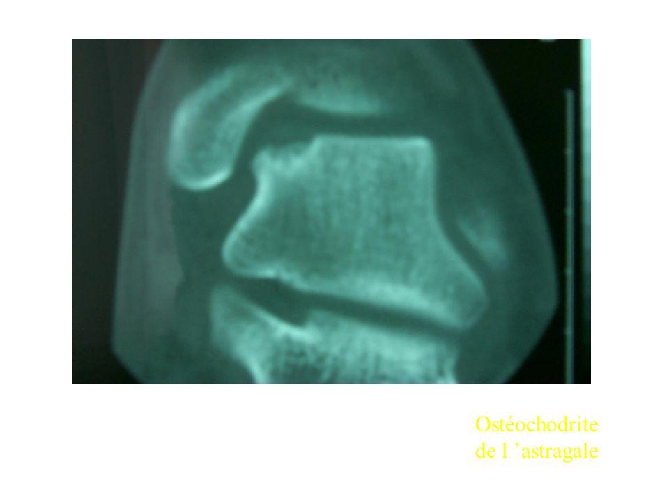 Ostéochodrite de l astragale
