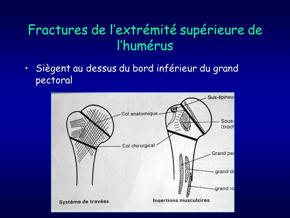 Fractures de lextrémité supérieure de lhumérus Siègent au dessus du bord inférieur du grand pectoral
