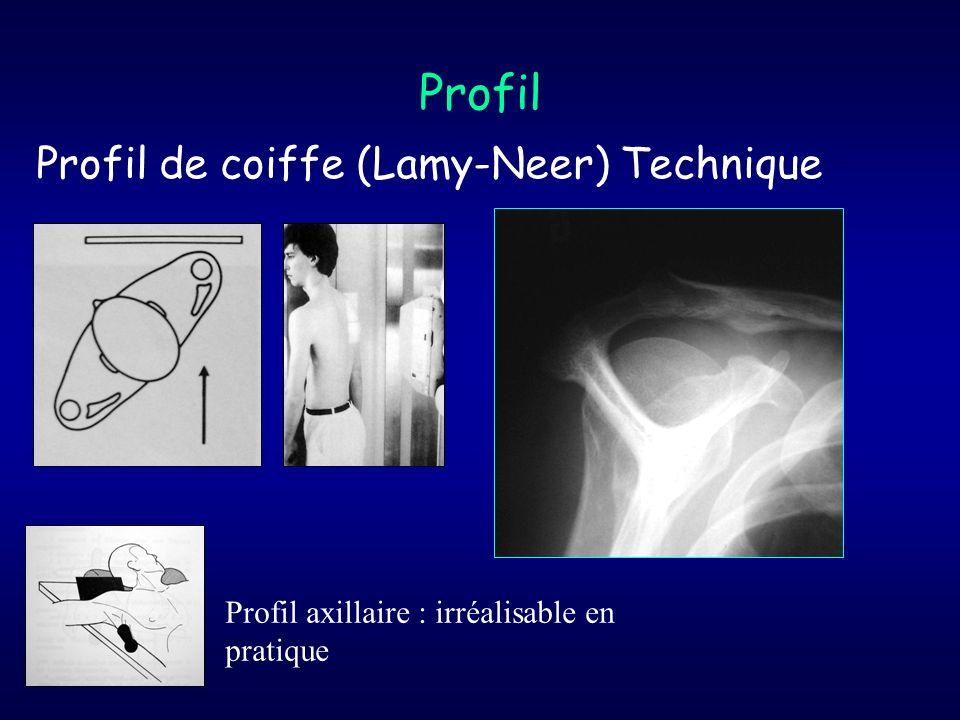 Profil Profil de coiffe (Lamy-Neer) Technique Profil axillaire : irréalisable en pratique