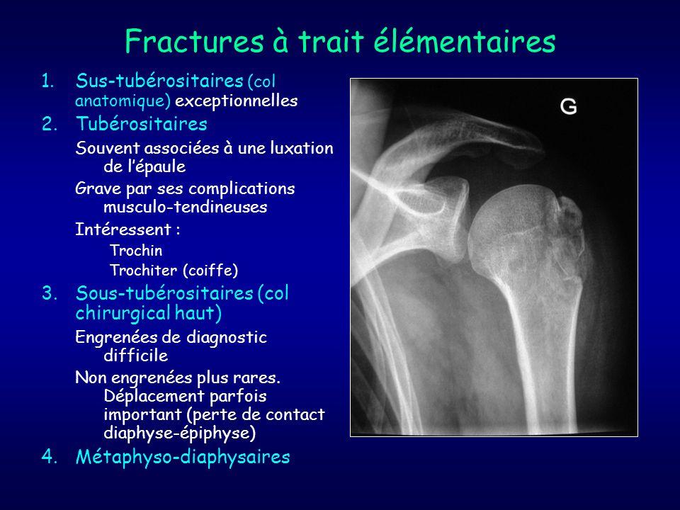 Fractures à trait élémentaires 1.Sus-tubérositaires (col anatomique) exceptionnelles 2.Tubérositaires Souvent associées à une luxation de lépaule Grav