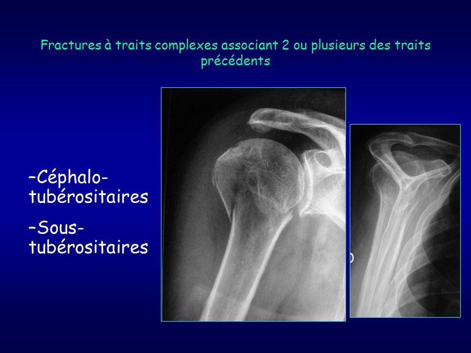 –Céphalo- tubérositaires –Sous- tubérositaires Fractures à traits complexes associant 2 ou plusieurs des traits précédents