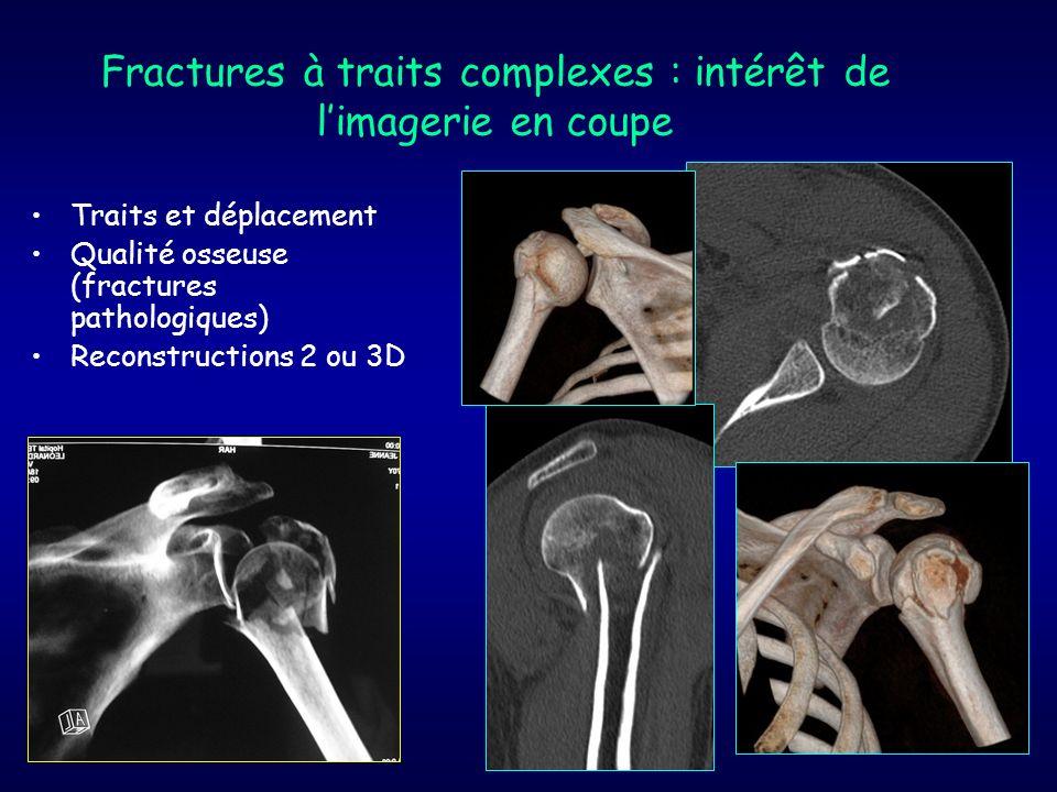 Fractures à traits complexes : intérêt de limagerie en coupe Traits et déplacement Qualité osseuse (fractures pathologiques) Reconstructions 2 ou 3D