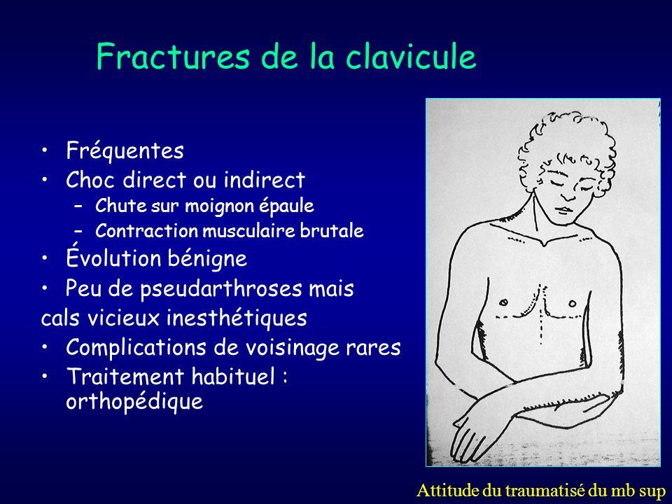 Fractures de la clavicule Fréquentes Choc direct ou indirect –Chute sur moignon épaule –Contraction musculaire brutale Évolution bénigne Peu de pseuda